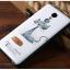 (พรีออเดอร์) เคส Xiaomi/Redmi Note3-GView thumbnail 18