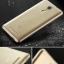 (พรีออเดอร์) เคส Xiaomi/Redmi Note3-เคสTPU แบบบางพร้อมปลั๊กฝุ่น thumbnail 19