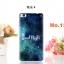 (พรีออเดอร์) เคส Huawei/P8-เคสยางลายการ์ตูน thumbnail 18