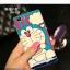 (พรีออเดอร์) เคส Vivo/X5 Max-เคสนิ่มลายการ์ตูน thumbnail 2