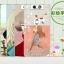 (พรีออเดอร์) เคส OPPO/N3-เคสพลาสติกลายการ์ตูน thumbnail 2