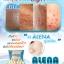 Alena gluta plus เอเลนน่า thumbnail 17